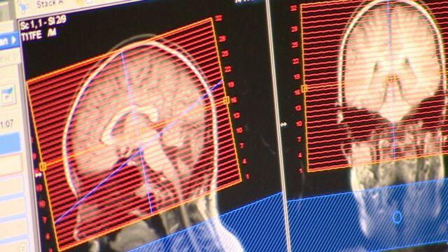 Spór o badania rezonansem magnetycznym. Badanie szybciej, wyniki później