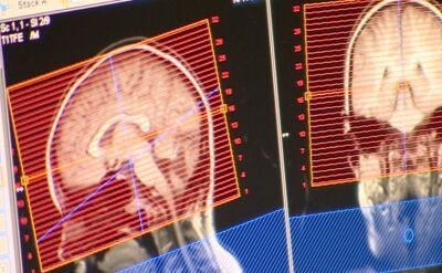 Spór o badania rezonansem magnetycznym